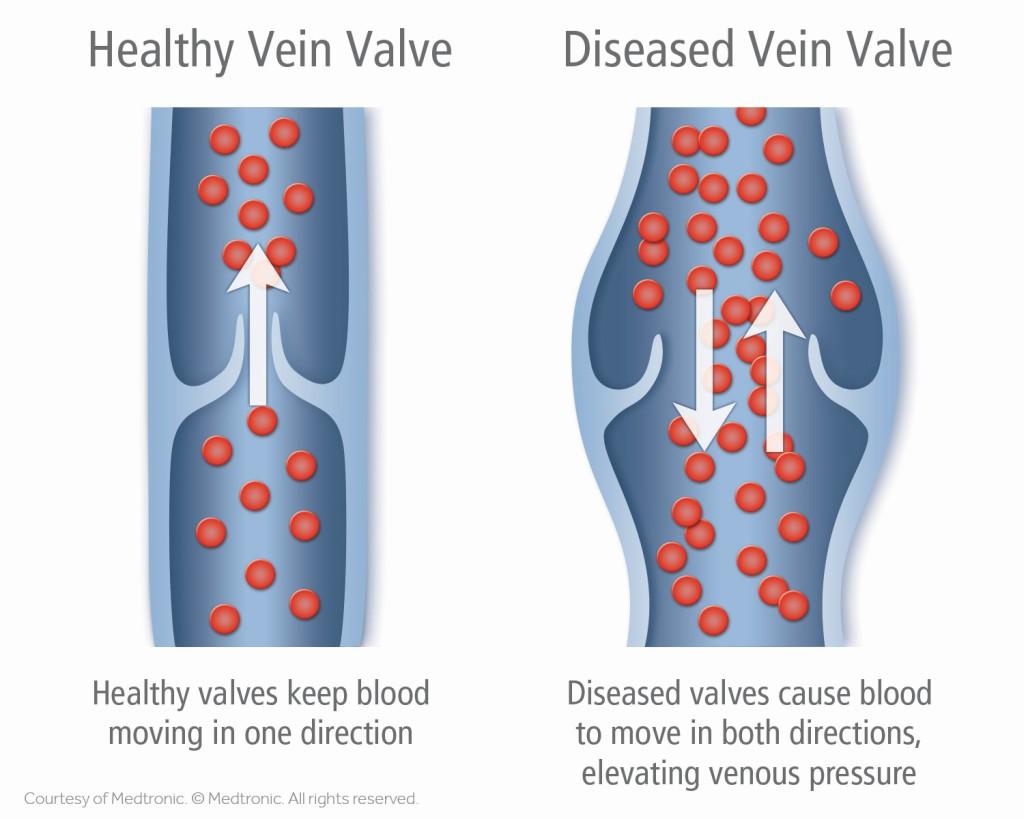Healthy vs. Diseased Vein Valve Illustration