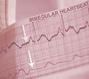 Jackson Heart Clinic AFIB Quiz