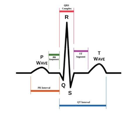 Premature ventricular contractions (PVCs)
